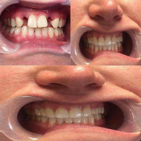 Our Gallery | Parker, CO | Twin Aspen Dental Center